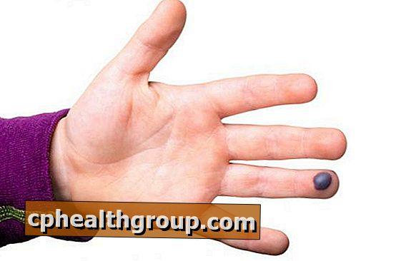 Kā ārstēt asins blisteri